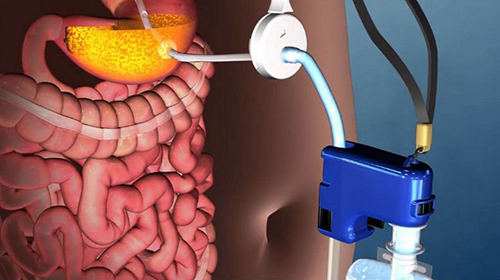 FDA Approves Aspire Assist Website 500 x 280